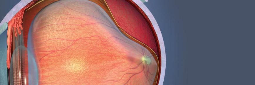 Retina & Vitreous » السقاف لطب العيون